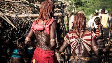 Omo valley - open wounds on Hamar girl